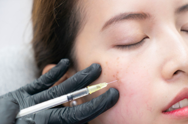 Dermal Fillers - most popular cosmetic treatments